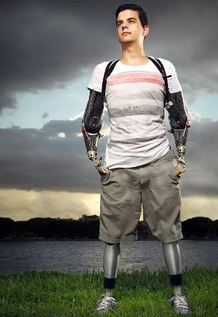 Depois de amputação de braços e pernas, jovem lança livro de superação